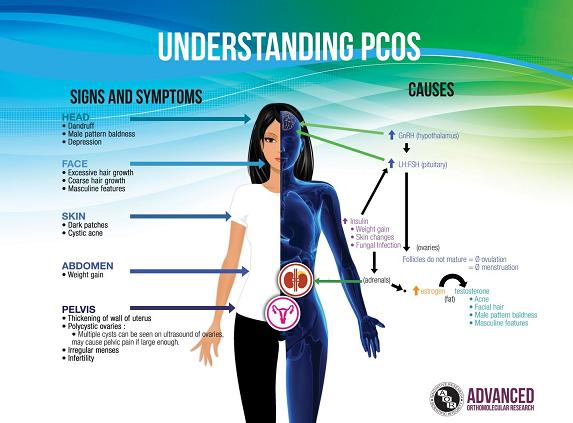 understanding PCOS